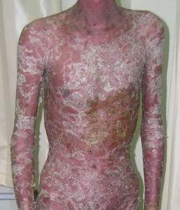 红皮病型银屑病的症状图片
