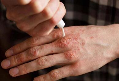银屑病给患者带来什么样的危害