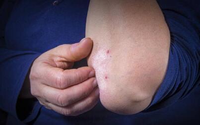 得了牛皮癣皮肤脱屑的原因是什么